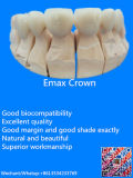 [إ-مإكس] تاج وأجسام مع [س] [متريلس] يجعل في الصين مختبرة أسنانيّة