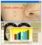 Machine d'analyse de peau pour le traitement de tache de rousseur