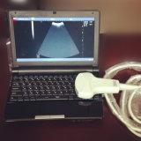 Machine portative d'ultrason d'ordinateur portatif de prix bas