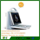 Ultrason portatif de Doppler de couleur des meilleurs prix Mslcu23