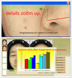 Analyseur de peau de miroir avec le megapixel 12
