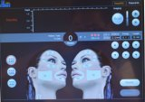A melhor máquina antienvelhecimento de venda do levantamento de face da remoção do enrugamento do ultra-som de Hifu