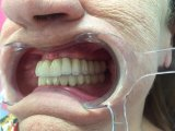 Implantes dentales de metal Puente cerámica de China Laboratorio Dental