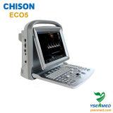 Precio de Chison Eco5 del ultrasonido de Doppler del color del Portable médico del hospital 2.o