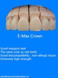 Coronas y puentes E-Máximos con los materiales del Ce hechos en el laboratorio dental de China
