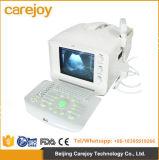 Rus-6000A 2017 beste verkaufenkrankenhaus-Klinik-bewegliche Ultraschall-Scanner-Maschine - Candice