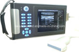 Digital Palm Ultrasound Diagnostic Scanner Ew-B10 mit Linear Probe L7l40 für Small Part Examination