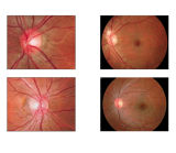 Hochwertiges Augengeräten-Nicht-Mydriatic China-Netzhautkamera