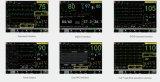 17 Monitor van de Dierenarts van het Scherm van de duim de Grote Veterinaire Geduldige met MultiParameters