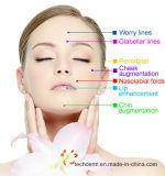 Enchimento do Ha para a cirurgia plástica (Secundário-pele 10ml de Derm)