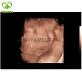 My-A031 Expert 4D Digital Color Doppler Ultrasound System