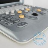 Beweglicher Veterinärfarben-Doppler-Ultraschall-Scanner (DopScan N9V)