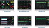 fötaler mütterlicher fötaler Doppler-Ultraschall-Ultraschalltouch Screen des Monitor-12.1inch (SC-STAR5000C)