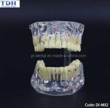 أسنانيّة [ترتمنت بلنّينغ] تربويّ مظاهرة أسن نموذج ([دي-م02])