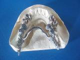 Marco parcial del molde con las conexiones preciosas hechas en el laboratorio dental de China