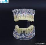 Zahnmedizinisches Behandlung-Planungs-pädagogisches Vorführung-Zahn-Modell (DI-M02)