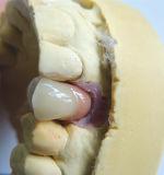 El injerto atornilló el puente No-Precioso de Pfm de dental chino