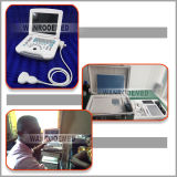 Us500 High-Precision DSC Digital Laptop Trolley Ultrasound Scanner