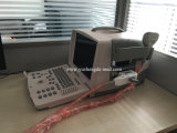 Scanner van de Ultrasone klank van de Machine van het Platform van PC de Goedkoopste Draagbare Volledige Digitale Medische