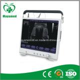 Explorador portable del ultrasonido de la proyección de imagen My-A012