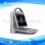 Sonoscape Color Doppler Ultrasonido Scanner con 3D / 4D