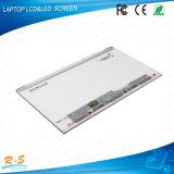 14 '' HD glatter TFT LCD Bildschirm B140xw01 Vc für Laptop