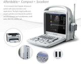 Échographie-Doppler portative bon marché de couleur de l'ordinateur portatif 3D pour le flux sanguin vasculaire