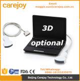 Laptop-Ultraschall-Maschine 10 Zoll-Ultraschallb/Hersteller des Scanner-Rus-9000f durch Ce ISO Anerkannt-Maggie