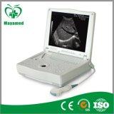 Scanner de l'ultrason My-A004