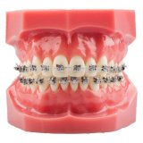 Orthodontisches Dental Metal Bracket in Orthodontic Typodont