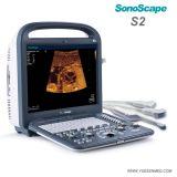 Explorador portable del ultrasonido de la máquina del ultrasonido del color de Sonoscape S2 3D 4D del precio portable de Doppler