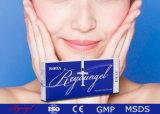 Remplissage réticulé de tissu de la languette Fullness+Soft d'injection d'acide hyaluronique