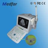 Bewegliches Ultrasound Diagnosis B Scanner MFC-Ss6 (für Menschen)