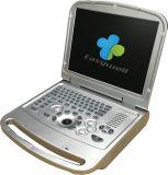 Volledige Digitale Ultrasone klank ew-C15 met Vaginale Sonde 5.0MHz voor Verloskunde en Gynaecologie