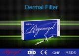 Inyección del ácido hialurónico/inyección cutánea del llenador del ácido hialurónico