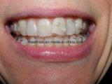 歯科矯正学の装飾的で見えないマウス・ガード