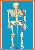 Scheletro umano 100% di 170 cm con il cranio aperto, il muscolo verniciato ed il legamento