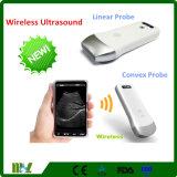 Lo nuevo de las ventas calientes Ultrasonido portátil inalámbrico convexo / Linaer sonda