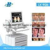 Máquina de Hifu do cuidado de pele para Solan e Linic