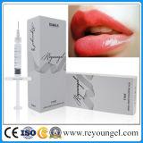 Acide hyaluronique cutané de remplissage réticulé par plénitude de languette de Reyoungel injectable