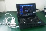 De Scanner van de Ultrasone klank van de Sonde nieuw-USB