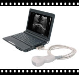 Scanner portatif d'ultrason d'ordinateur portatif de coût bas