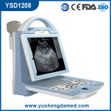Ce portable Handheld del ultrasonido de la computadora portátil de Digitaces aprobado (YSD1208)