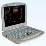 15 de LEIDENE van de duim Veterinaire Ultrasone klank van Minitor Kenmerkende ew-C15V met Rectale Sonde voor het Schapen, Paarden, RunderFokken