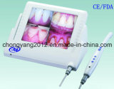 8 Inch LCD-drahtlose zahnmedizinische orale Intrakamera