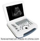 臨床医学の使用された完全デジタルラップトップの超音波のスキャンナー(YJ-U500)