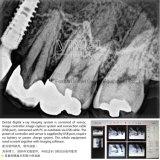 Sensor Odontológico Digital X Ray Sim 001/002 Coréia