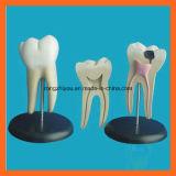 Modèle anatomique molaire géant d'art dentaire de dent