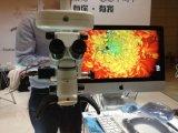 Adaptador da câmara de vídeo do microscópio de operação