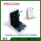 Mejorar que el ultrasonido Mslcu28 de Doppler del color del ultrasonido 4D de Mindray